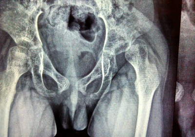6 year old boy dislocated hip X-Ray